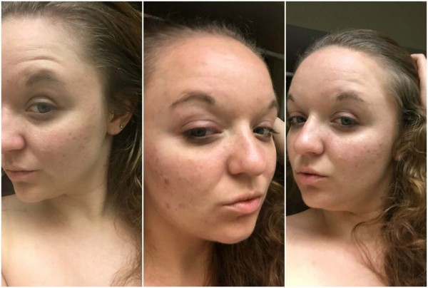 BEFORE using Neutrogena Naturals cleansing products